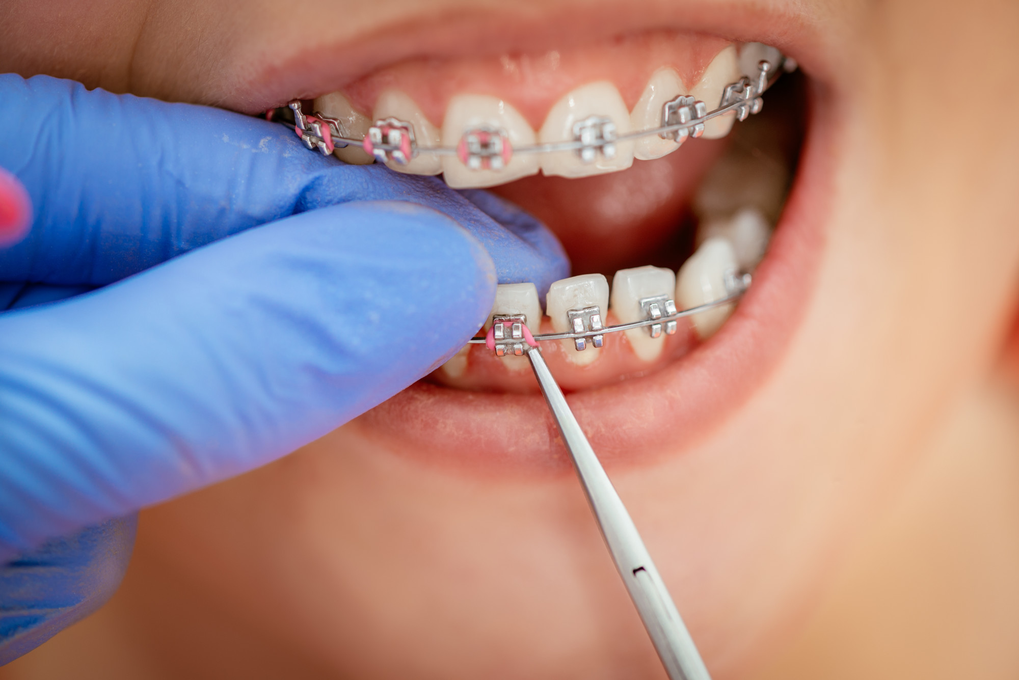Person Undergoing Dental Procedure on Her Braces